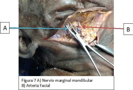 Estructuras anatómicas de riesgo en el abordaje submandibular ...